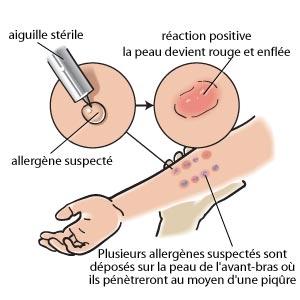 Des tests cutanés lorsque l'on suspecte une allergie